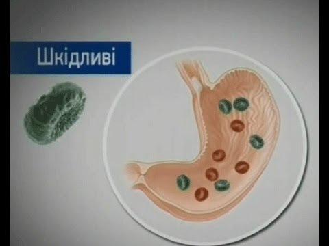 Дисбактериоз кишечника. Причины, симптомы, современная