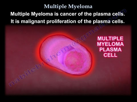 Multiple Myeloma - Everything You Need To Know - Dr. Nabil Ebraheim