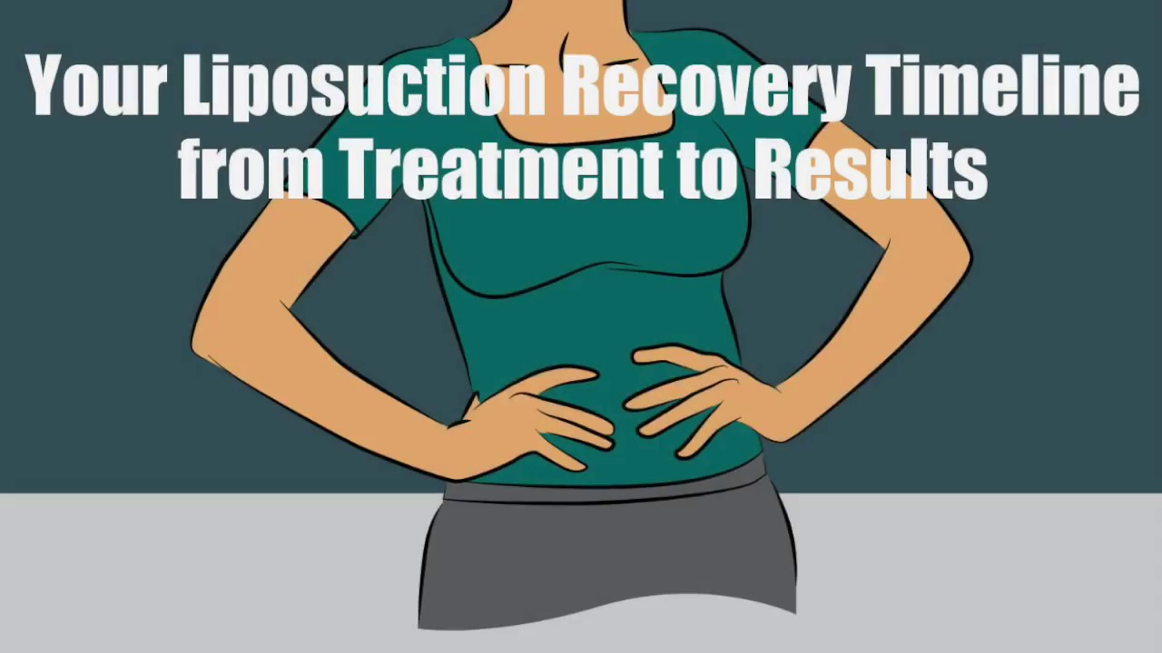 Your Liposuction Recovery Timeline From Treatment to Results