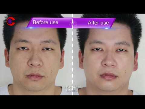 MS-4271 How To Use Aqua Facial 3n1 Hydro Facial Water Facial Peeling Diamond Dermabrasion Machine