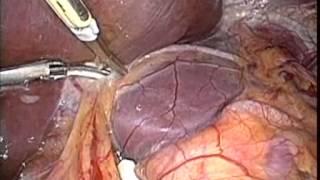 腹腔鏡下肝外側区域切除術 STEP 2 肝の授動と肝切離
