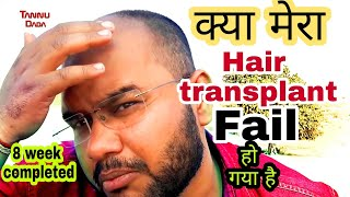Hair transplant journey || ( WHATS APP NO:-7049845155) 8 week completed || #tannudada