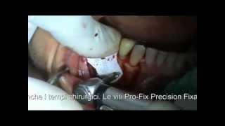 Dr. Marco Ronda -  I vantaggi di Pro-Fix™(, 2012-10-15T10:14:33.000Z)