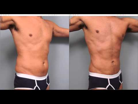 The Benefits of Liposuction for Men | Dr. Sterry Explains