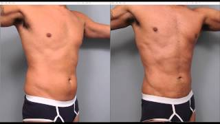 Liposuction in NYC | Photos & Recovery | Dr  Thomas P  Sterry