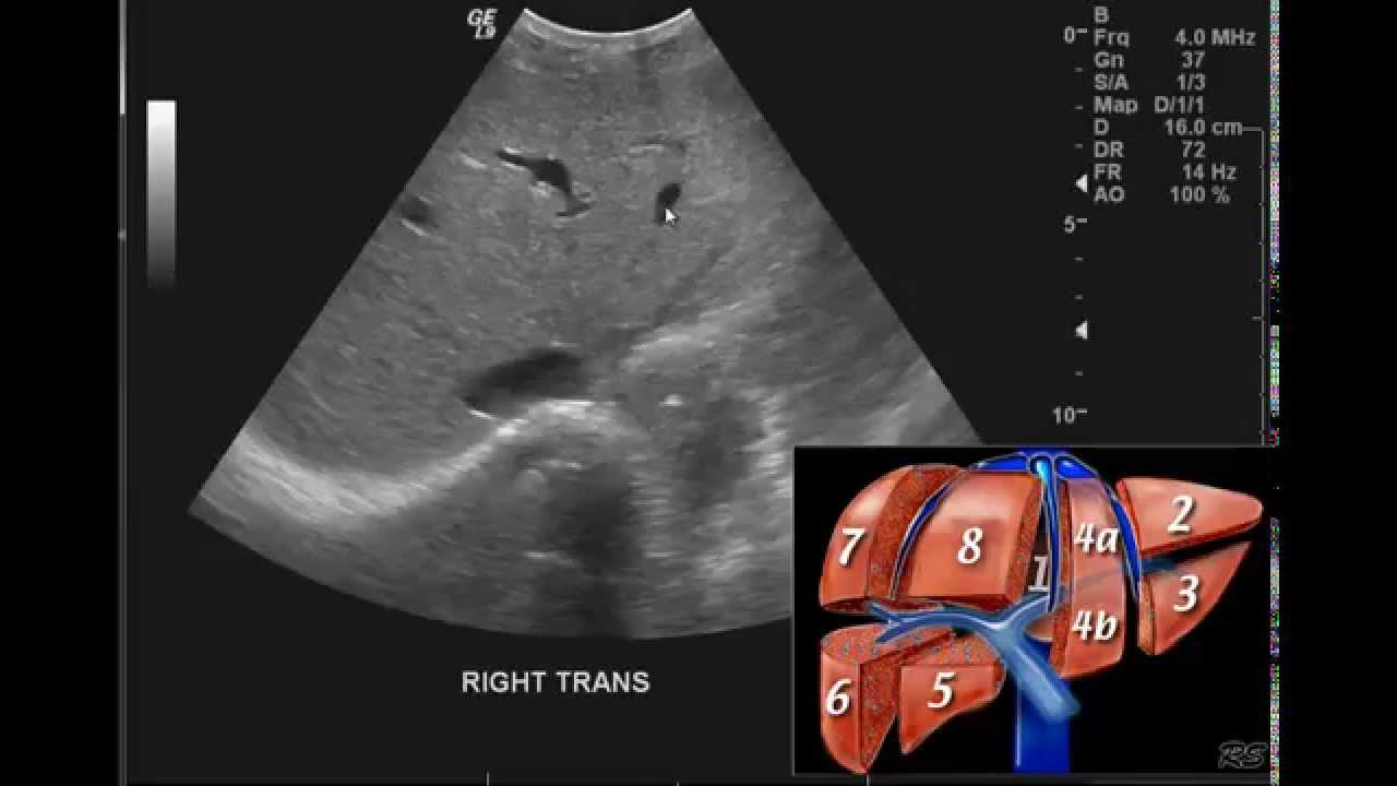 Introduction to the interpretation of Abdominal Ultrasound
