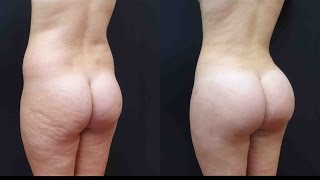best brazilian butt lift see her surgery and results with 1100cc per side
