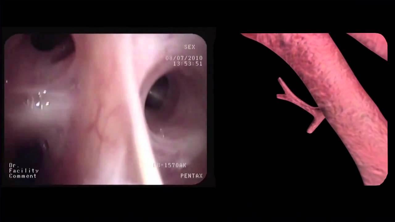 Segmental Anatomy Bronchoscopy Youtube