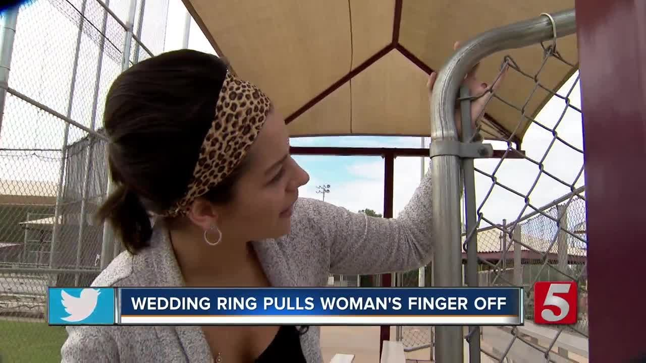 Woman Loses Finger When Wedding Ring Gets Caught On Fence Youtube