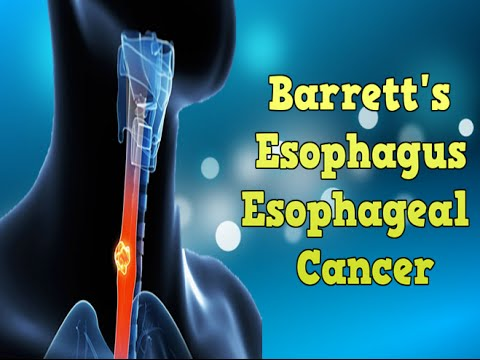 What is the best treatment for Barrett's esophagus?