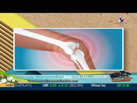 สโมสรสุขภาพ : ยังไม่แก่ แต่มีอาการปวดเข่า (7 ส.ค.58) MCOT HD ช่อง 30