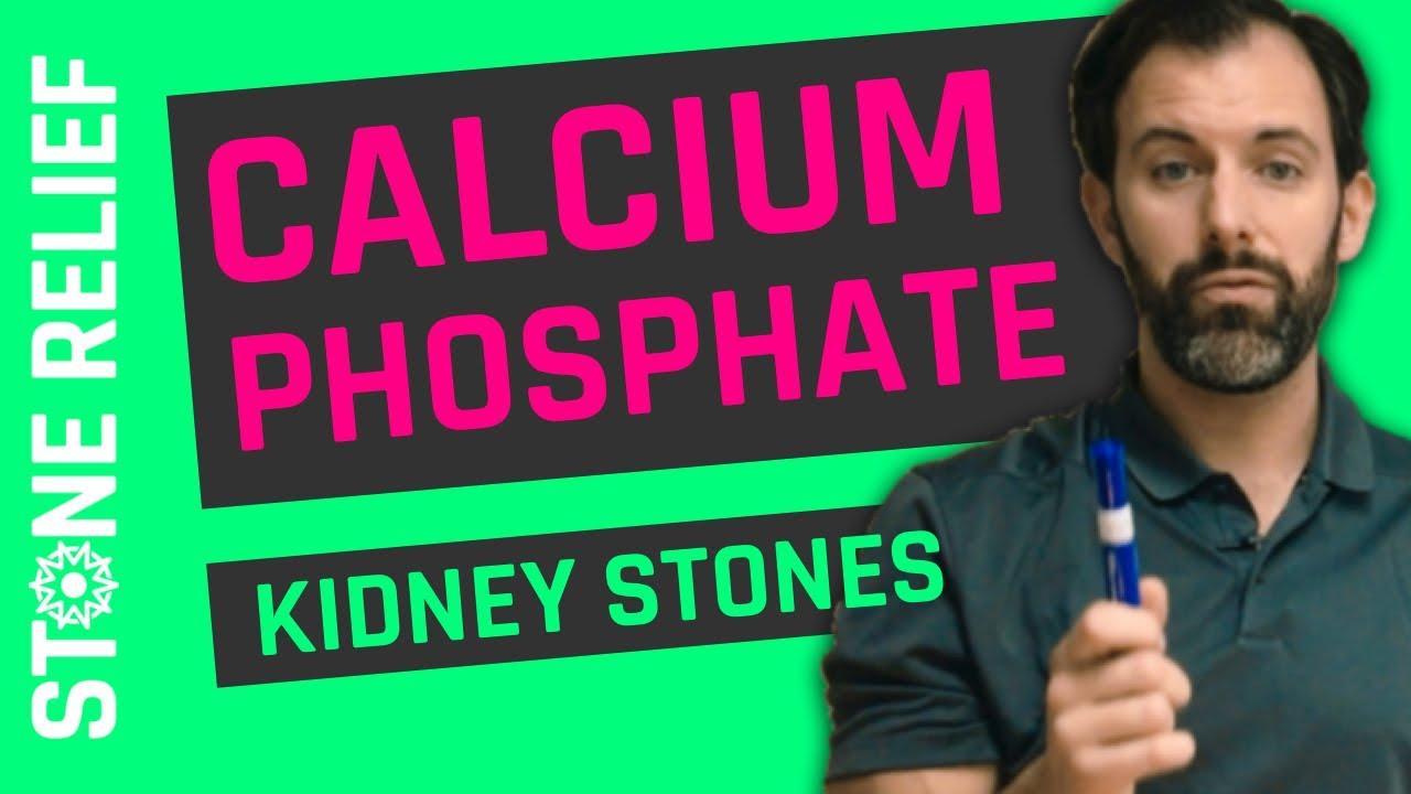 Calcium-Based Kidney Stones – Stone Relief