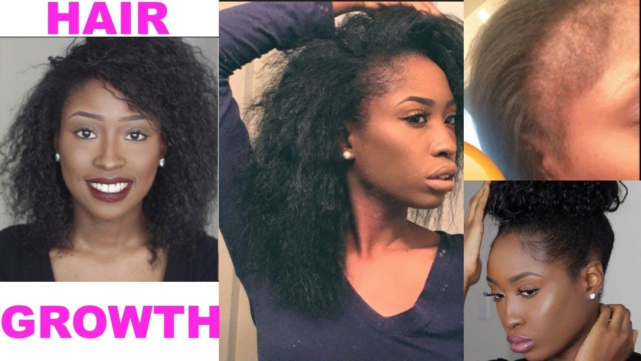 How I Grew My Hair Bald Edges Back Natural Hair Length Check