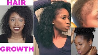 HOW I GREW MY HAIR & BALD EDGES BACK! Natural Hair length check & products!