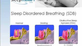 In Home Sleep Studies For Snoring & Apnoea