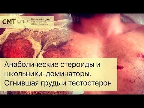ПРЕДНИЗОН, prednisone -