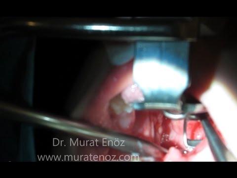 Geniz Eti Ameliyatı Videosu