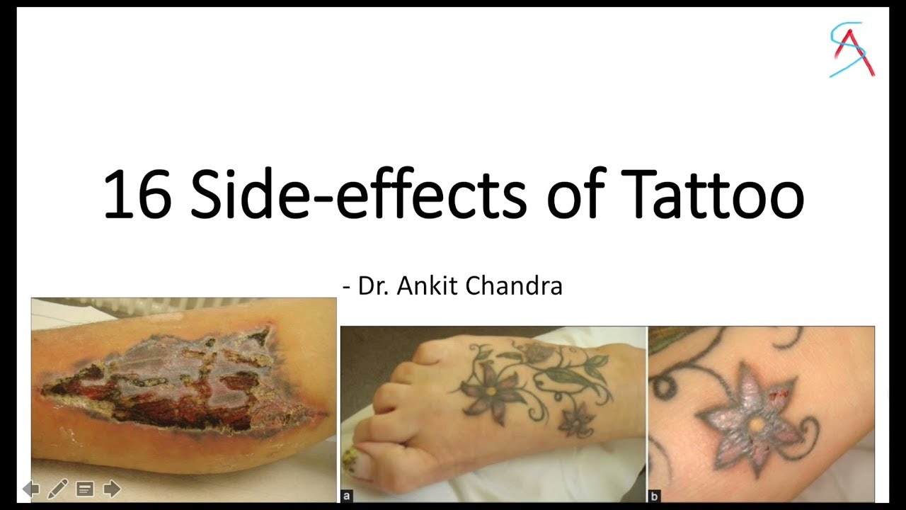 16 Side effects of Permanent Tattoo - Dr Ankit Chandra
