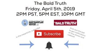 The Bald Truth,  Friday April 5th, 2019
