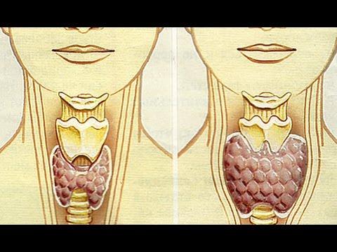 Зоб щитовидной железы. Причины, симптомы, диагностика и
