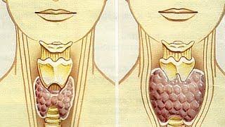 Беременность-фактор риска болезней щитовидной железы