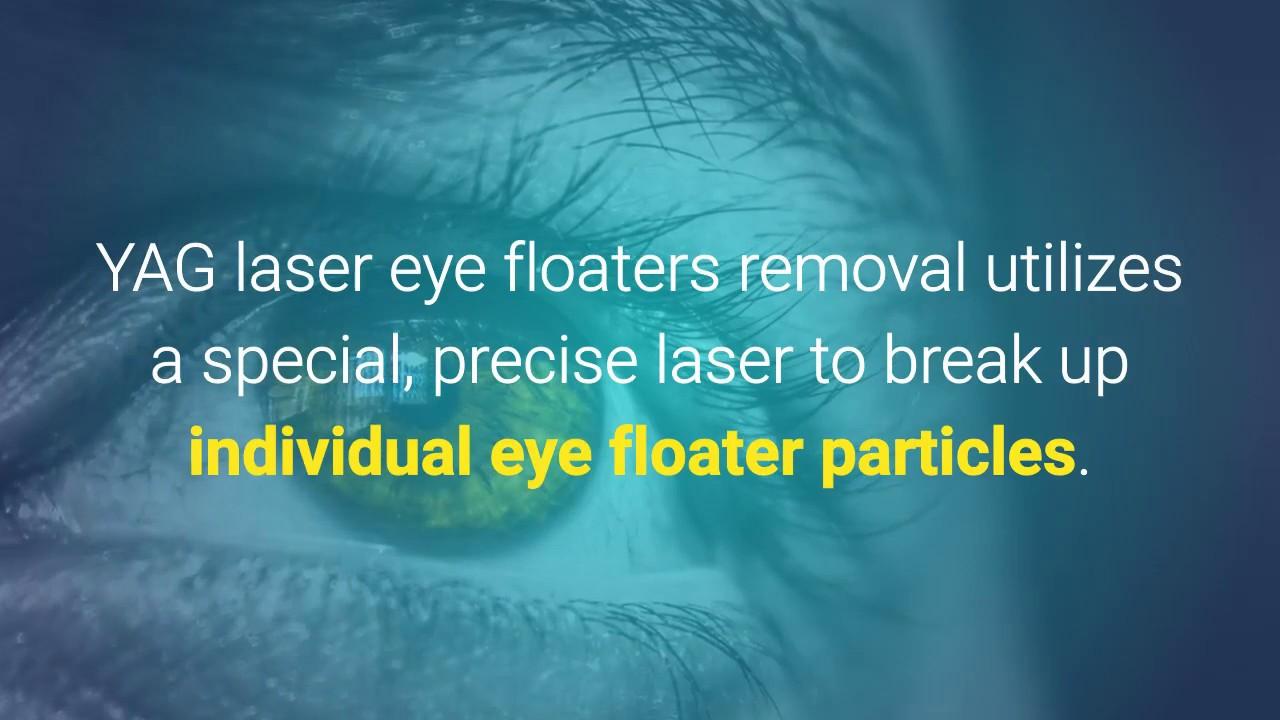 Eye Floaters Cure – Fondos de Pantalla