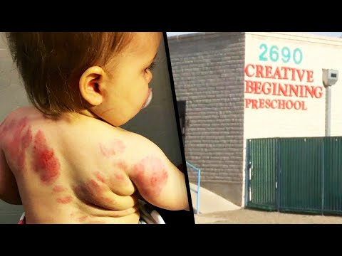 Mom Claims Baby Was Bit Over 25 Times at Day Care
