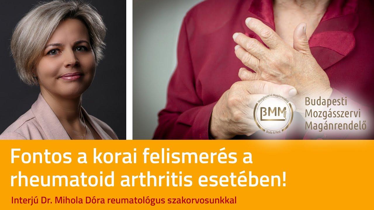a rheumatoid arthritis elsősorban az ízületeket érinti