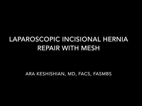 Laparoscopic Incisional Hernia Repair With Mesh