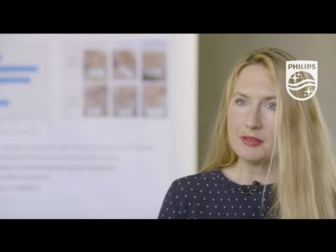 Philips Blue LED Light Psoriasis Vulgaris Therapy|PD Dr. Med Von Felbert Discusses Clinical Results