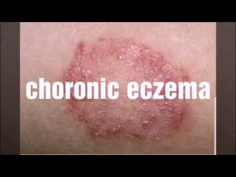 clear up eczema