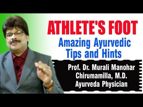 Athlete's Foot | Ayurvedic Remedies \ Prof. Dr. Murali Manohar Chirumamilla, M.D. (Ayurveda)