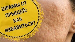 видео Как избавиться от угревых рубцов