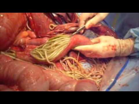 Ascarid Impaction-Equine Small Intestine