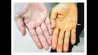 Comment traiter et guérir l'hépatite