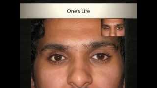 Custom Ocular prosthesis: Artificial Eyes