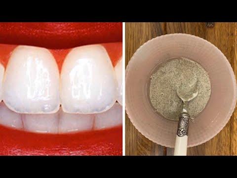 Желтые зубы станут
