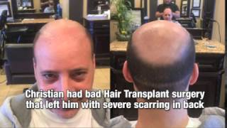 Bald guy gets a hair tattoo
