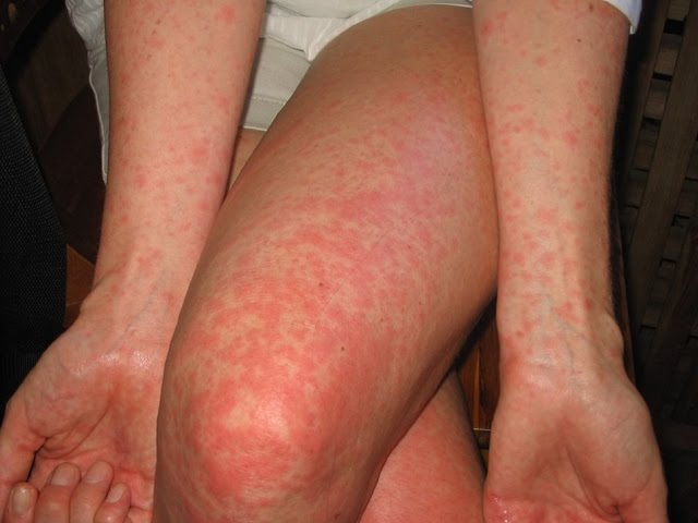 creatine alcohol allergy rash