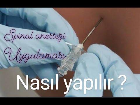 Spinal Anestezi (Belden Uyuşturma) Nasıl Yapılır? #Spinal #Anestezi