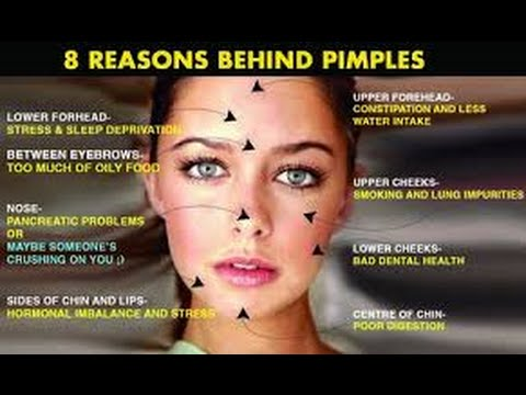the main causes of pimples youtubethe main causes of pimples
