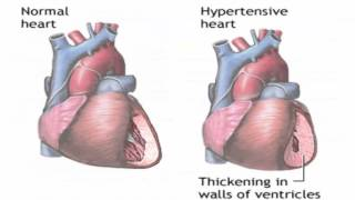 Causes symptoms and treatment of high blood pressure