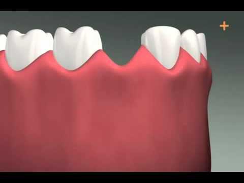 Имплантация зубов - Стоматология . Цены на