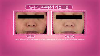MILKY DRESS THE WHITE, ORIGINAL INSTANT WHITENING CREAM, Clinic test Thumbnail