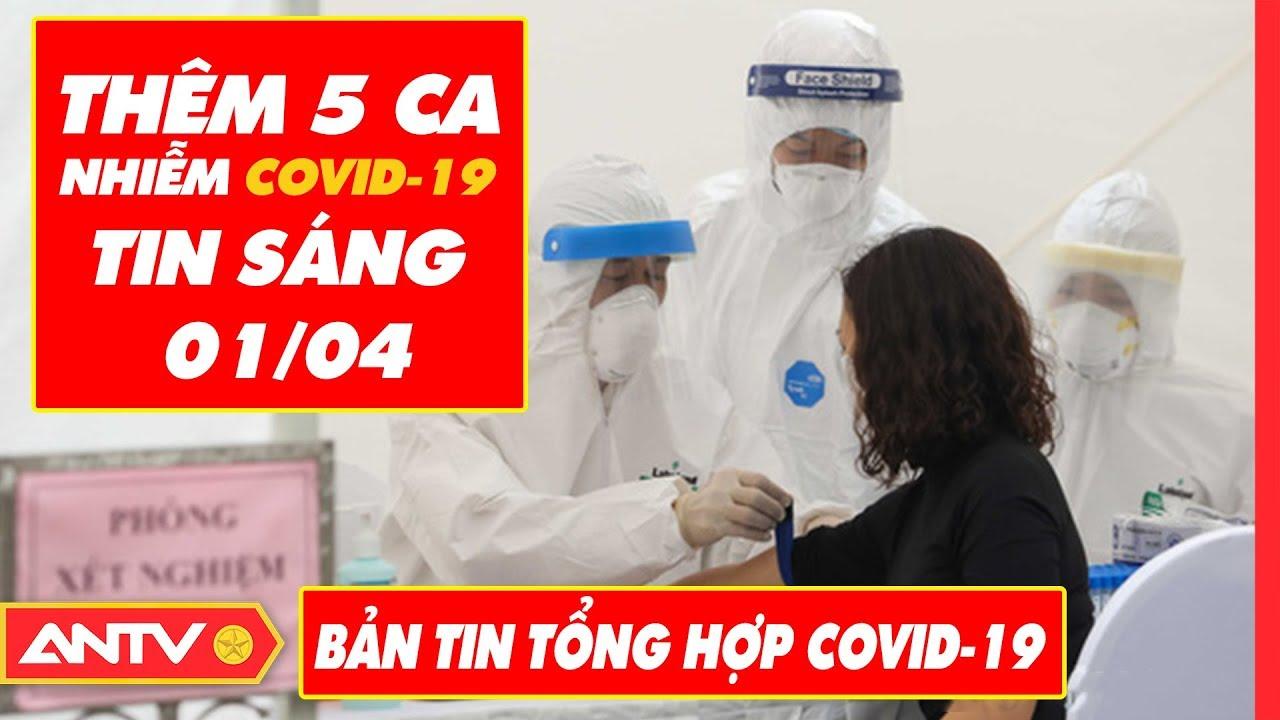 Tin tức dịch bệnh Covid-19 sáng 01/04 | Tin mới virus Corona Việt Nam và đại dịch Vũ Hán | ANTV