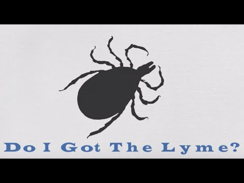 Do I got the Lyme?