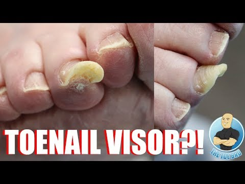 thickened-and-deformed-middle-toenail-treatment