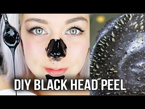 DIY BLACK HEAD NOSE PEEL! SUPER EASY AND IT WORKS!