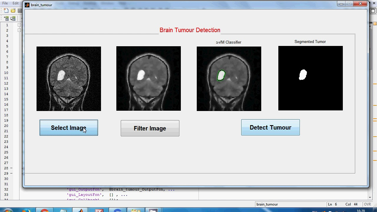 brain tumour detection using image processing matlab, Brain tumour using  MRI Images