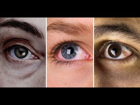 Быстрый анализ состояния здоровья ПО ГЛАЗАМ! 12 признаков того, что ЕСТЬ ПРОБЛЕМЫ